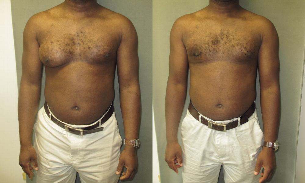 Double breast tux